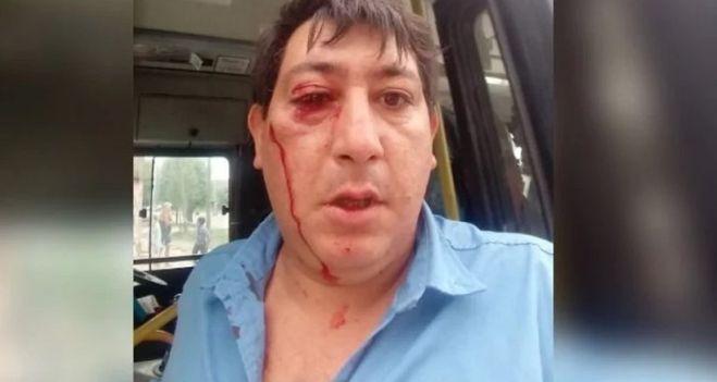 Lo atacaron a piedrazos por no dejar subir a una chica al colectivo que iba lleno